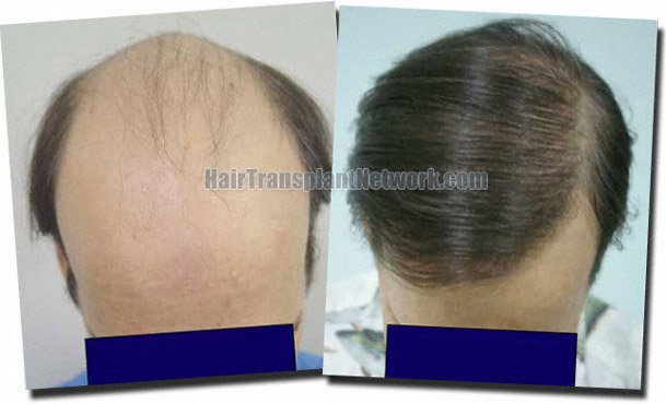 top-before-after-hair-transplant-7705-grafts-Dr-Pathomvanich
