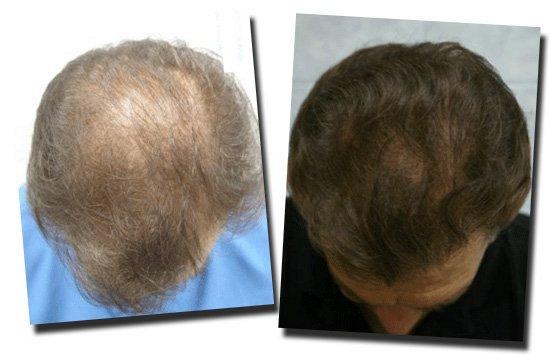 top-before-after-hair-transplant-Dr-Pathomvanich