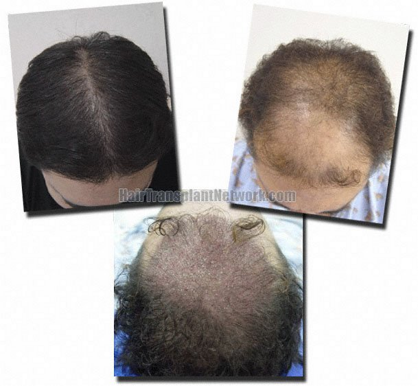 top-before-after-post-op-hair-transplant-2078-grafts-Dr-Pathomvanich