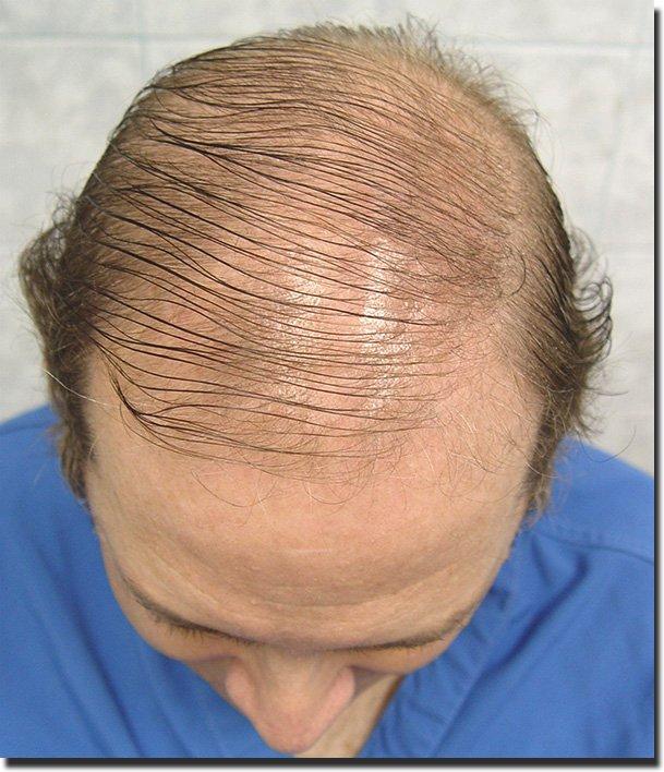 top-before-hair-transplant-6620-grafts-Dr-Pathomvanich