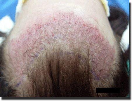 top-post-1st-s-hair-transplant-3092-grafts-Dr-Pathomvanich